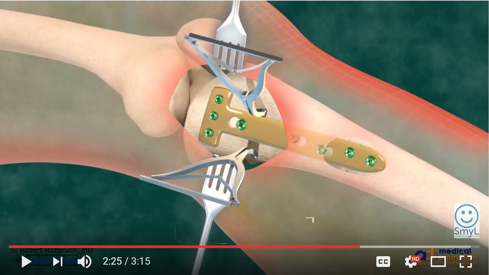 High tibial osteotomy physical therapy - High Tibial Osteotomy For Bow Leg Correction