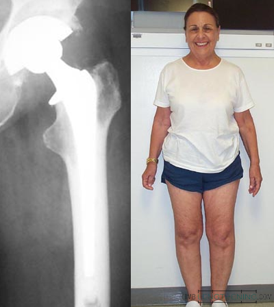 total hip replacement, limb deformity, limb length discrepancy