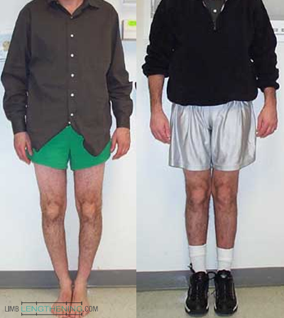 bowleg correction, limb deformity, leg length discrepancy