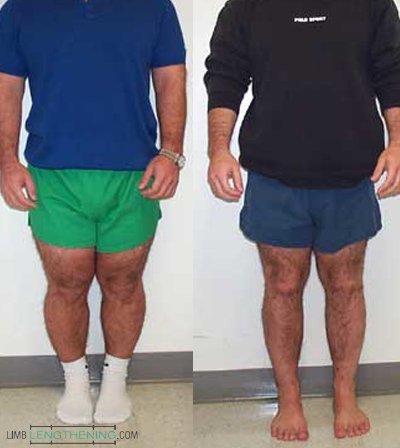 stature lengthening, leg lengthening, limb lengthening