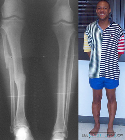 tibial lengthening, deformity correction, limb length discrepancy