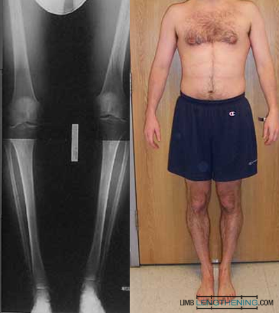 femur nonunion, leg lengthening, limb lengthening