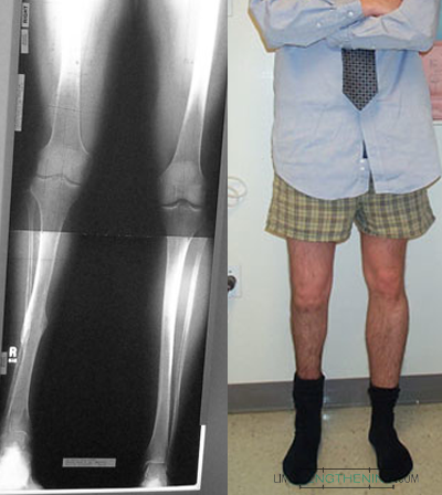 limb lengthening, leg deformity, limb malalignment