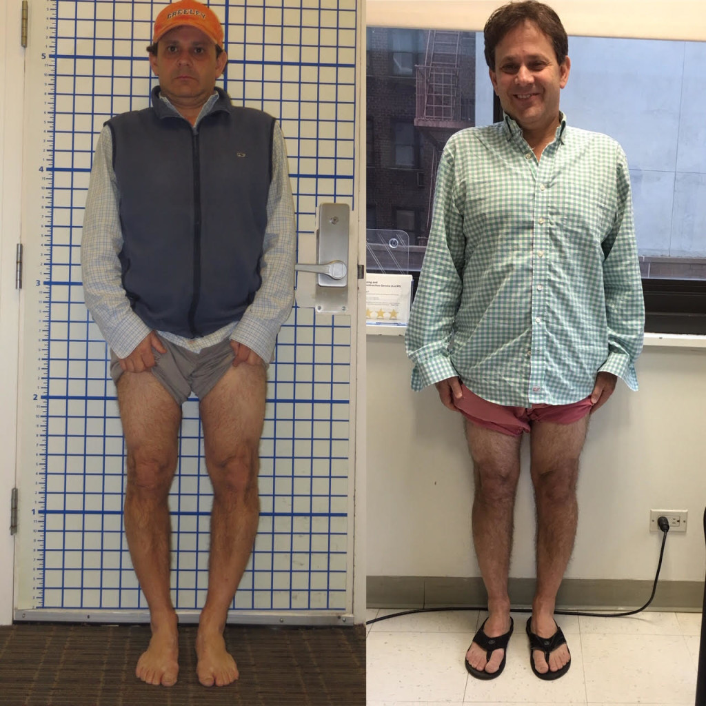 before and after, limb lengthening, bow leg deformity