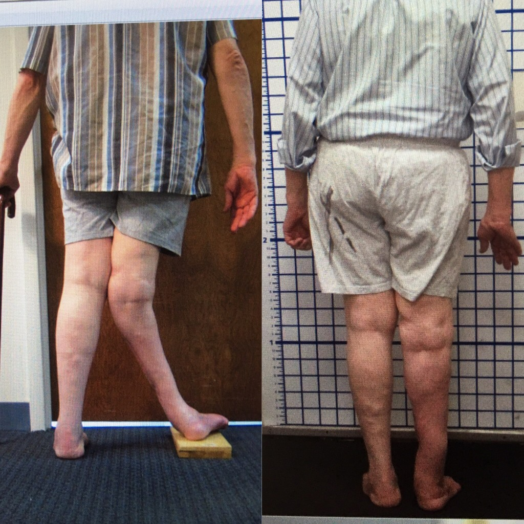 leg length discrepancy, limb malalignment, limb lengthening