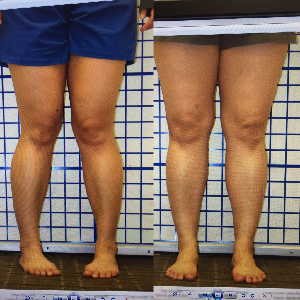 limb deformity, limb lengthening, limb malalignment