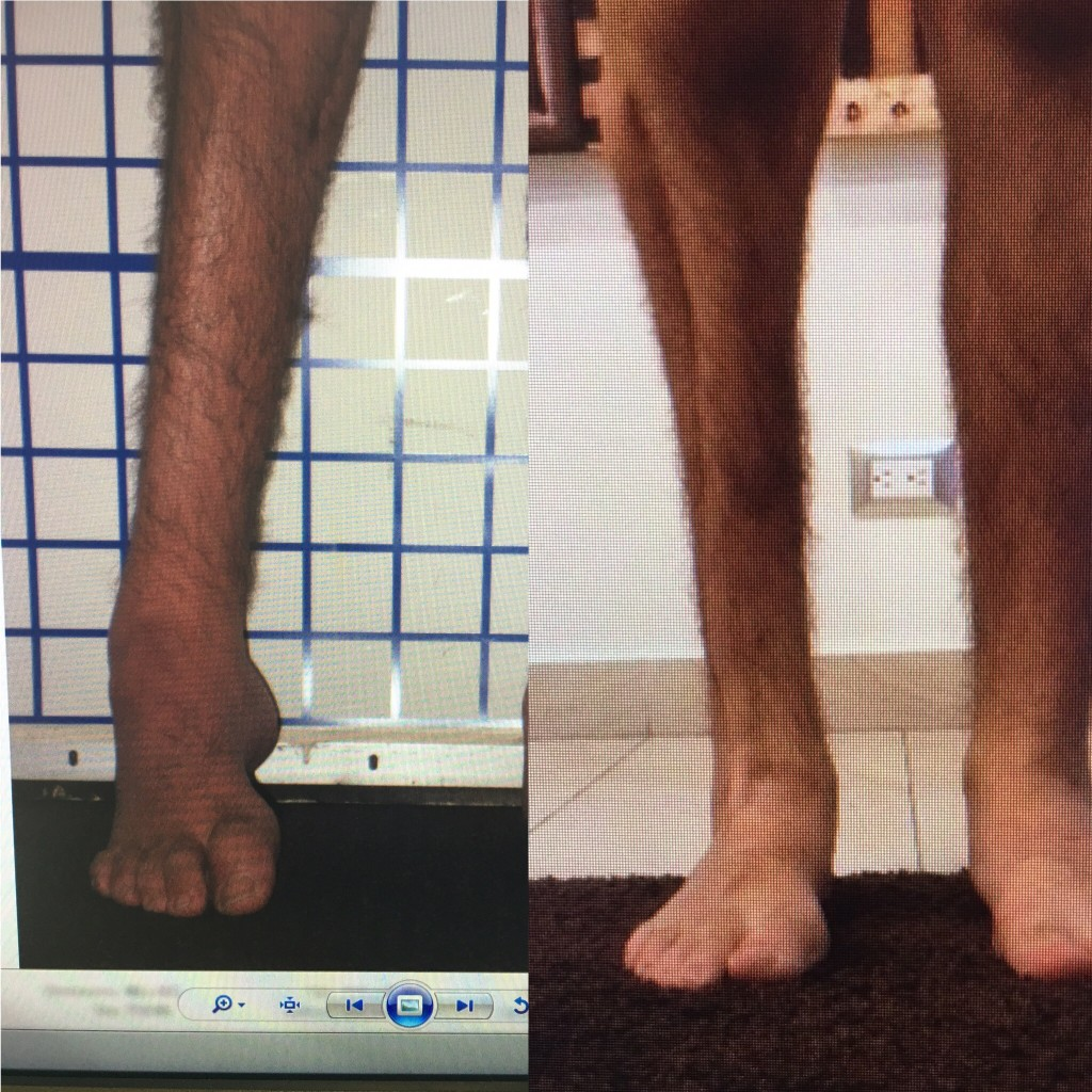 ankle reconstruction, limb lengthening, limb deformity